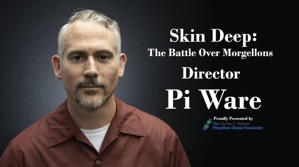 Pi.Ware.Interview